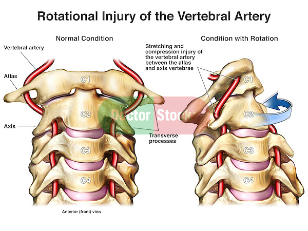 This medical exhibit shows two anterior views of the upper cervical spine and vertebral arteries. In the first image depicts normal anatomy contrasted with the second image, a Rotational Injury of the Vertebral Artery, which can sometimes be seen in violent whiplash injuries.