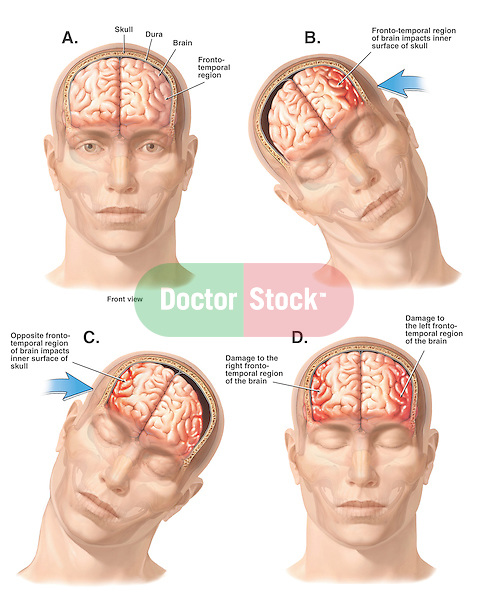 Graphically depicts a closed head injury with a side-to-side whiplash motion. Begins with the head in normal position. Labeled structures include the skull, dura, brain and fronto-temporal region. Injury stages: 1. Head and neck move violently to the person's right, with the left fronto-temporal region impacting the inner surface of the skull; 2. Head and neck move left, with the right fronto-temporal region impacting the skull; and 3. Brain damage to the fronto-temporal regions.