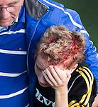AMSTELVEEN -  Hoofdwond bij een speler van Zuid Holland tijdens de DOD (DistrictOntmoetingesDag) jeugdhockey . COPRIGHT KOEN SUYK