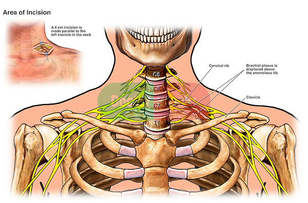 Brachial Plexus Injury Caused by Cervical Rib Anomaly (Anomalous)