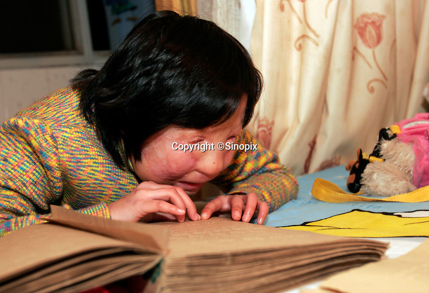 11 year old Liu Fangyuan (Yuan Yuan) practices reading braille in the bedroom that she shares with her parents in Nanjing, China. In 2002, Yuan Yuan's aunt poured sulfuric acid on her face after losing a housing dispute with Yuan Yuan's father. The attack blinded and seriously disfigured Yuan Yuan, while her aunt is serving a life sentence in prison, Yuan Yuan and her family awaits a controversial face transplant...PHOTO BY SHEN / SINOPIX