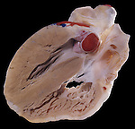 A lateral section of the human heart showing the ventricles. Red, Right Auricle.