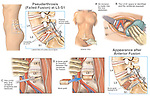 Low Back Pain - L5-S1 Continued Spinal Instability with Anterior Spinal Fusion Surgery.
