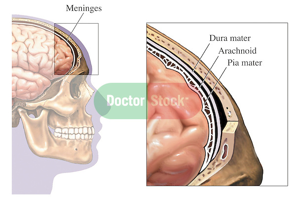 This medical exhibit shows the meninges of the brain within a cut-away lateral (side) view of the skull. An orientation illustration is included, showing the entire head and skull. Labels identify the meninges, dura mater, arachnoid, and pia mater.