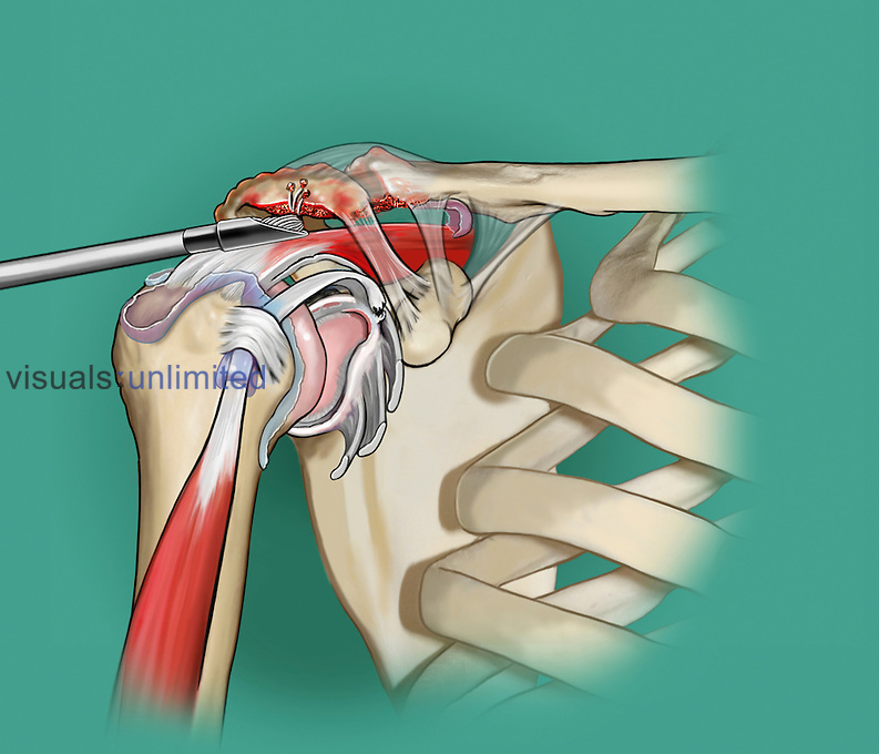 Biomedical illustration of a tear of the labrum that has been debrided, bursectomy has taken place, the ostephytes in the acromion and distal clavicle have been resected and made into a smooth surface to decompress the rotator cuff.