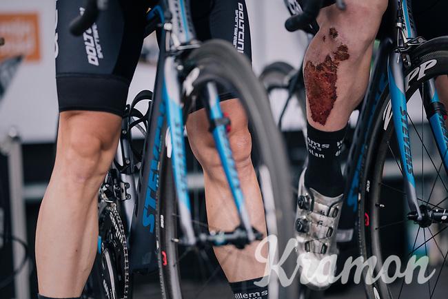 serious road rash<br /> <br /> 3rd Dwars Door Het hageland 2018 (BEL)<br /> 1 day race:  Aarschot > Diest: 198km