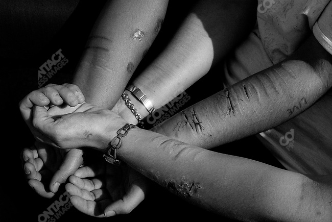 Lacerated and burned arms, not true suicide attempts but self-mutilation common among female prisoners. Correctional Center for Women, Pardubicé, Czech Republic, 1992.