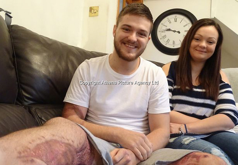 """Pictured L-R: Luke James with sister Sammy-Jo James<br /> Re: A man owes his life to his sister who happened to be driving past after his car plunged down an embankment, medics have said.<br /> Luke James, 25, from Swansea almost severed his right leg completely and could have bled to death if Sammy-Jo James had not applied a tourniquet before emergency services arrived.<br /> At the time, they both worked for a private ambulance company.<br /> Trauma consultant Ian Pallister said: """"She saved his life.""""<br /> Mr James, the father of an 18-month-old daughter, had lost control of his van a few hundred yards from his home in Caerbont, Swansea Valley, in December.<br /> He has no memory of the crash but his sister, a trained first responder, said: """"My training kicked in and I kept a calm head."""""""