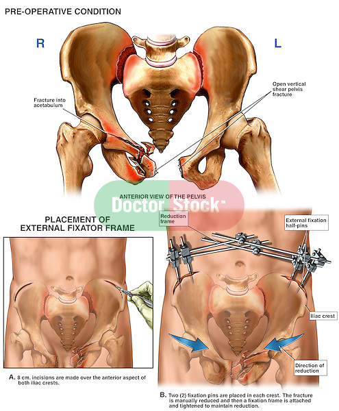 This custom medical exhibit features multiple images describing a severe crush injury and fixation of the pelvic bones. Images include the pre-operative pelvic crush fractures, surgical incisions across the iliac crests anteriorly, and final post-operative view with iliac screws and an external pelvic stabilization frame.