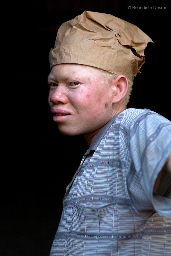 May 11, 2010 - Yambio, Sudan - Simon John, is a 18 year old sudanese albino from Yambio, Western Equatoria, Sudan. He has no parents because his father and mother died during the war so he had to take care of himself. He works in construction. He says he works in the hot sun all day long, but he has no choice because he has to pay for his food, his school fee and his rent. Simon skin is badly damaged from the sun. His delicate skin is prone to infections and diseases if not taken care of. Albinism is a genetic condition caused by a lack of melanin in the skin, eyes and hair. Photo credit: Benedicte Desrus