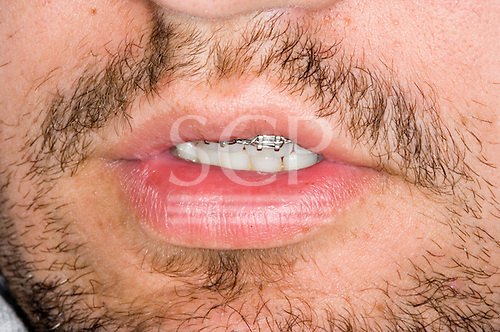 Kingston upon Thames; Surrey. Young unshaved man with braces on his upper teeth.