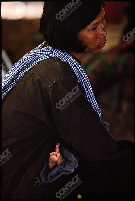 A Cambodian mother with her child in the Sakeo refugee camp where thousands fled the Khmer Rouge, near the Cambodian border. Thailand, November 1979