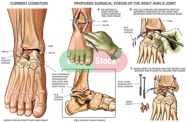 Ankle Joint Injury with Fusion Surgery. Shows the presence of old fixation screws in the ankle and painful post-traumatic arthritis of the ankle joint with collapse and narrowing of the joint space. Surgical steps: 1. Incision of the ankle to expose the joint space; 2. Removal of the arthritic bone surfaces and old screws; 3. Placement of bone graft and new cancellous bone screws across the ankle joint for the fusion.