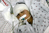 Ehab Afdal Barghouthi (14) who was shot by Isaeli Border police with a rubber-coated bullet that struck him in the forehead above his right eye and entered his skull, is seen in Ramallah Hospital, Ehab was reported to have gone into a coma. Photo by Quique Kierszenbaum