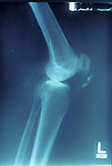 x-ray of knee showing calcification