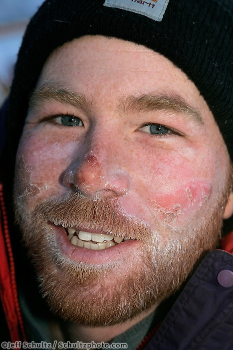 "Thursday  March 15, 2007   ---- Nome, Alaska.  Zack Steer's face is ""on the healing side"" in Nome after being windblown and frostbit in the early part of the race."