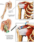 This medical exhibit diagram depicts a full-thickness tear injury of the right supraspinatus muscle tendon, one of the  rotator cuff tendons, or SIT group.  Subsequent medical illustrations show surgical repairs of the torn muscle tendon.  After an incision is made in the region of the injury, the supraspinatus muscle tendon is trimmed and reattached to the humerus.  Afterward, an acromioplasty (surgical removal of the acromion process) is performed to relieve pressure on the muscle belly.