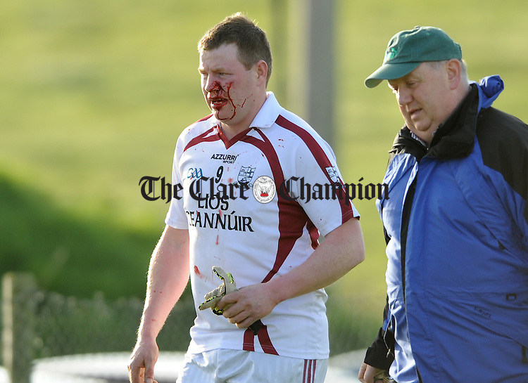 A bloodied Liscannor's Alan Flaherty heads for the dressing room after being sent off during their Cusack Cup game at Liscannor. Photograph by John Kelly.