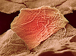 Skin cells from a burn. SEM X3000 at 8.1 mm wide