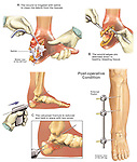 This full color medical exhibit features several surgically oriented illustrations showing the initial Fixation of severe Foot injuries with Placement of External Fixator