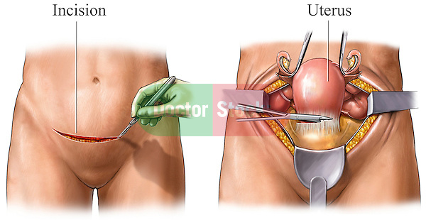 This medical exhibit depicts two steps of an abdominal hysterectomy procedure as seen from an anterior (front) view. The first graphic pictures a surgeonís hand cutting with a scalpel across the female abdomen. The second illustration displays a large laparotomy exposure with surgical instruments cutting along the lower border of the uterus.