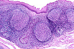 Tonsil section showing lymph nodules. LM X12
