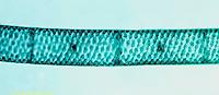 PX08-036z  Spirogyra - green algae, vegetative state - Spirogyra spp. 100x  series: see PX08-036z, 038z, 039z, 040z, 050c