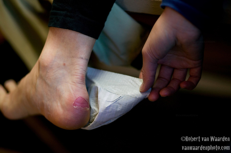 After a hard day on the cross country ski trail, the blister is revealed.