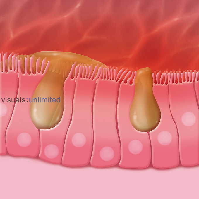 Biomedical illustration of the ciliated sinus cells that drain mucus that traps external particles.