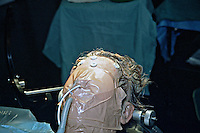 Craniotomy for magligant astrocytoma. Patient is anaesthetized and intubated for ventilation. Endotracheal tube is fixed in place using adhesive tape. Barium markers are placed on the forehead...©shoutpictures.com.john@shoutpictures.com