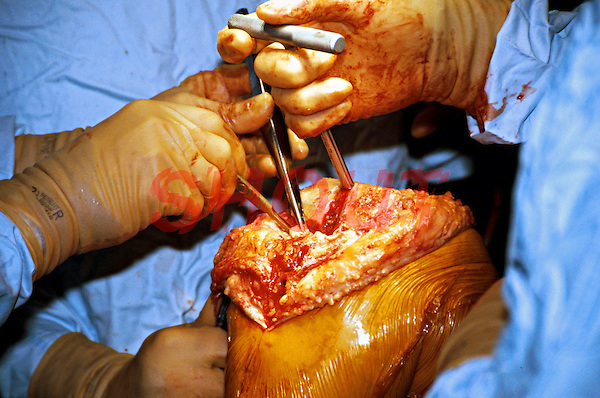 Surgeons performing a total right knee replacement operation in an operating theatre. Here the tibia is being prepared for the prosthetic knee. This image may only be used to portray the subject in a positive manner..©shoutpictures.com..john@shoutpictures.com