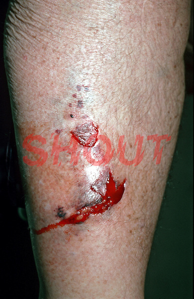Wound of pre-tibial, lower leg. This image may only be used to portray the subject in a positive manner..©shoutpictures.com..john@shoutpictures.com