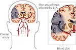This medical exhibit shows areas of the temporal and parietal lobes of the brain affected by a stroke, or TIA, using two steps. The first image shows the damaged brain and related arteries within the outline of the head. The second image is an enlargement of the damaged region displaying the blood clot in the cerebral artery that caused the stroke.
