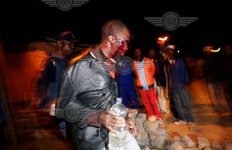 An injured man is escorted away by police in Alexandra township. Thousands of migrants have been forced to flee due to brutal xenophobic attacks on foreign African migrants living in South Africa's impoverished townships.