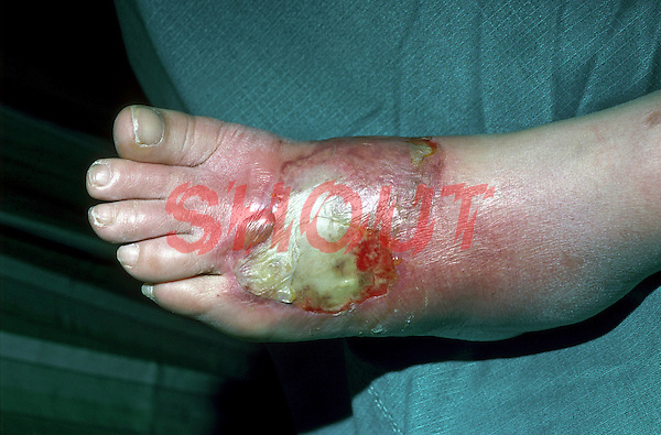 Full thickness, third degree burns to the foot. This image may only be used to portray the subject in a positive manner..©shoutpictures.com..john@shoutpictures.com