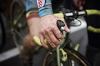 post-race hands<br /> <br /> Junior Men's race<br /> UCI 2016 cyclocross World Championships