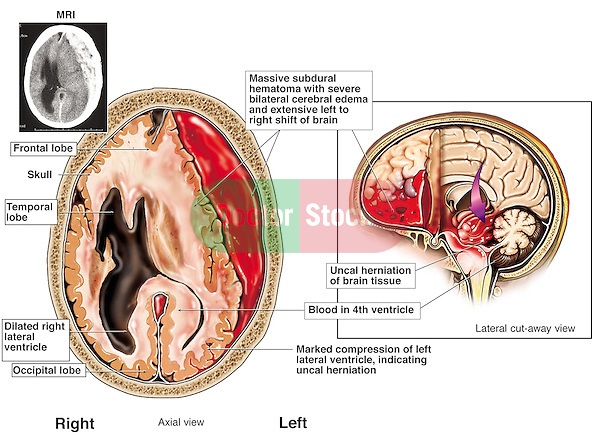 Brain Injury - Subdural Hematoma. This custom medical legal exhibit reveals several images showing fatal head injuies and massive subdural hematoma.