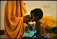 Garissa, NE Kenya, March 2006.Garissa regional hospital, Therapeutic Feeding Centre.  Fatuma Madai Aden, 10 years old, weighs only 8 kg, she suffers from severe malnutrition, she is one of more than 4 millions people affected in the region by the worst drought in man's memory.