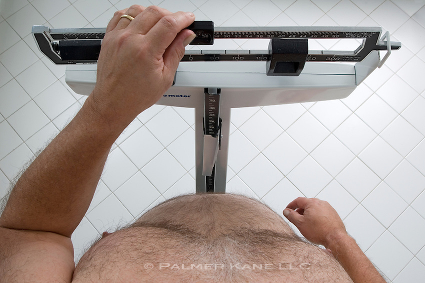 Overweight man weighing himself on doctor's scale