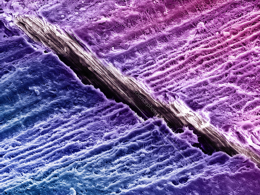 Color-enhanced Scanning Electron Microscope (SEM) image of human tooth dentine (fracture surface) showing a crack in the surface. 70% of dentin consists of the mineral hydroxyapatite, 20% is organic material, and 10% is water. Magnification: x1200 when printed 10 cm wide.