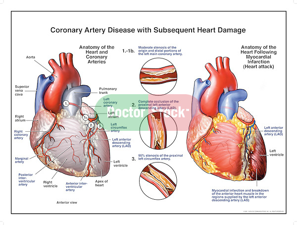 Coronary artery disease with subsequent heart damage doctor stock coronary artery disease with subsequent heart attack clear depiction showing blocked coronary arteries including ccuart Image collections