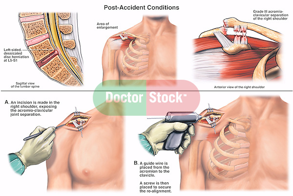 This full color medical-legal depicts post-accident injuries including an  L5-S1 disc herniation and a right-sided Grade III acromio-clavicular separation with subsequent repair of the shoulder.Surgical steps:  1. An incision made into the shoulder joint; and 2. A guide wire placed from the acromion process to the clavicle with a screw securing the realigned joint.