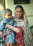 Leprosy