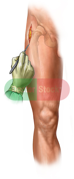 Lateral Leg Incision; this medical illustration illustrates initial incision in a tibial fixation procedure.