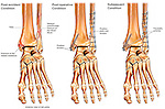 This full color medical exhibit depicts a fractured ankle, its surgical fixation and subsequent arthritis. The exhibit consists of three images. The first image shows a fracture of the ankle. The second image shows the surgical fixation of the ankle. The final image shows subsequent arthritis of the ankle.