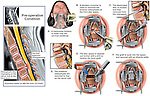 Cervical (Neck) Spine Injury with Anterior Discectomy and Spinal Fusion Surgery. The following images are shown in this medical illustration series:..1. Post-accident MRI film color highlighted to reveal the osteophytes and disc herniation at C5-6, 2. Surgical incision into the neck, osteophyte and disc removal, 3. preparation of the fusion site, Placement of bone graft and fusion plate and screws. ..