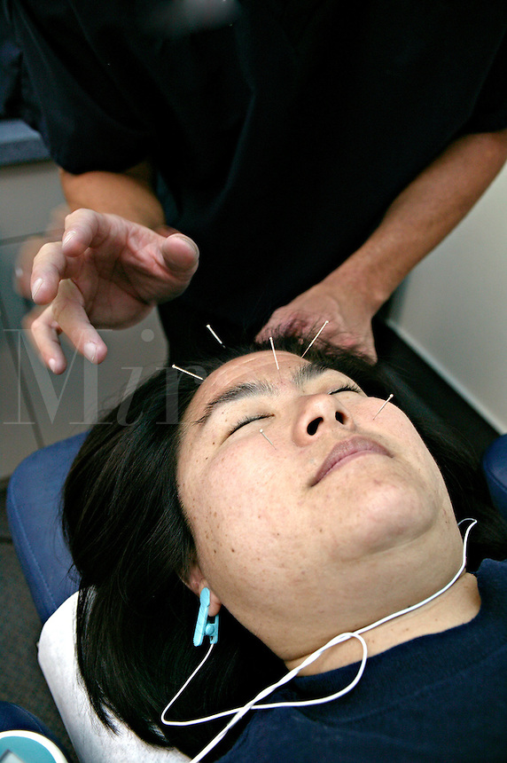 Tapping in acupuncture needles for pain relief.