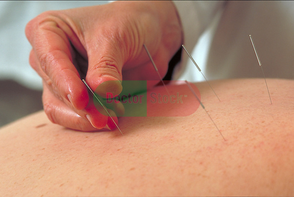 hand placing acupuncture needle in patient's back