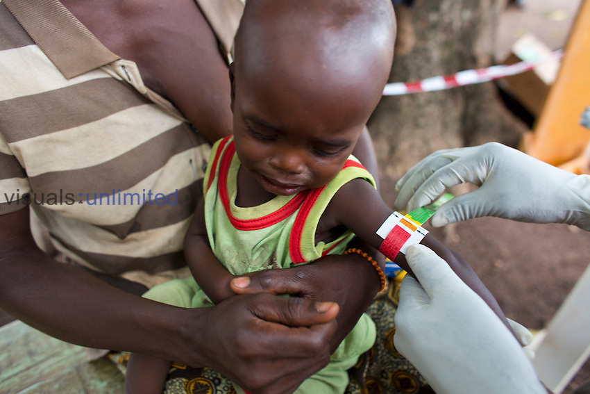 Sick baby being treated at MSF mobile clinic in Central African Republic