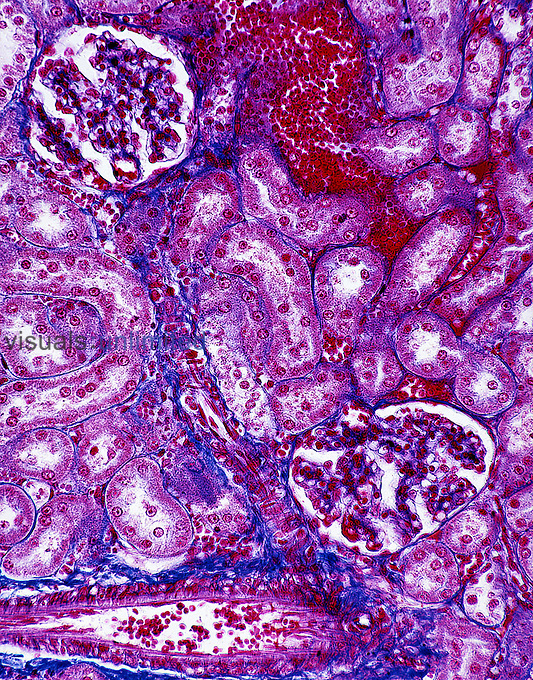 Kidney section with glomeruli, blood capillary, and tubules. LM X250